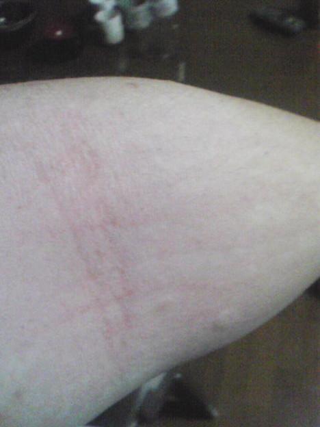 猫アレルギー 発疹